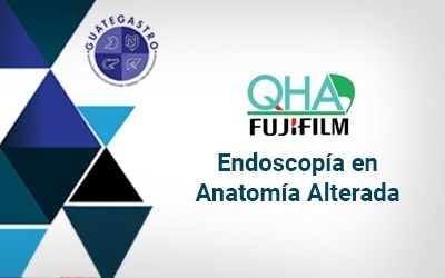 fujifilm endoscopia alterada 2